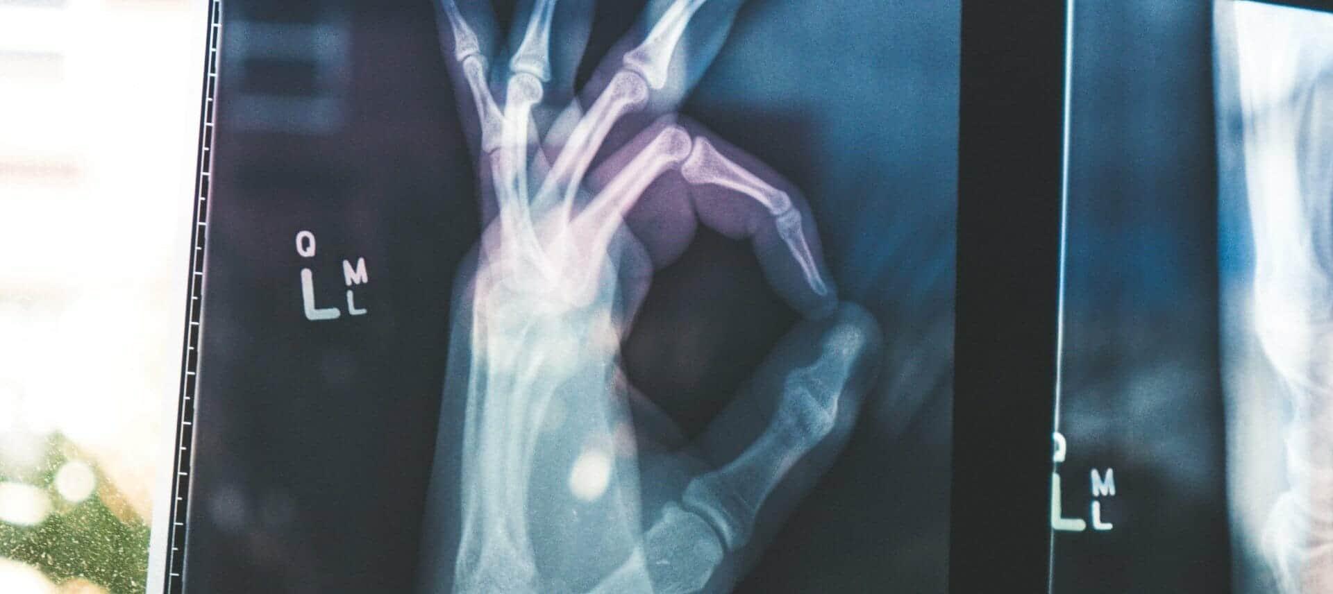 Een scan van een hand als metafoor voor een gratis seo scan